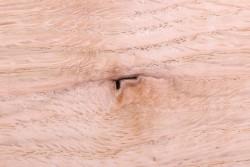 Как исцелить ячмень на глазу и его последствия с помощью заговоров